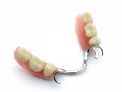 Dental Implants vs. Bridges and Partial Dentures   Healthy Teeth ...